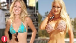 Top Worst Celebrity Plastic Surgery Fails
